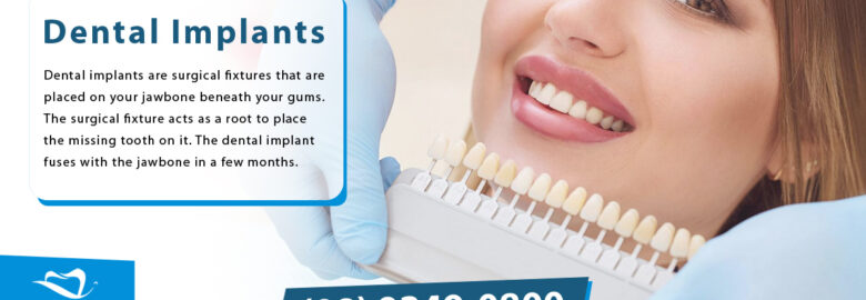 Dental Implants Cost – Dental Implants In Perth
